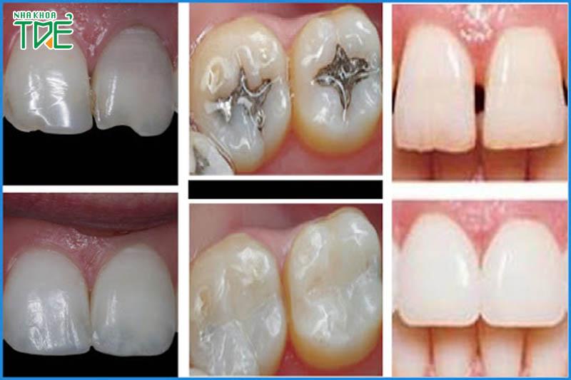 Trám răng Composte có an toàn không? Có bền không?