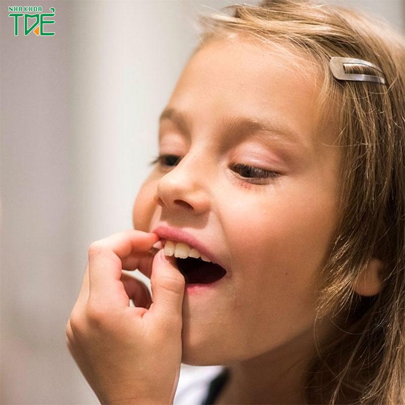 Trẻ thay răng sữa sớm có tốt không? Những lưu ý giúp bé có hàm răng khỏe đẹp
