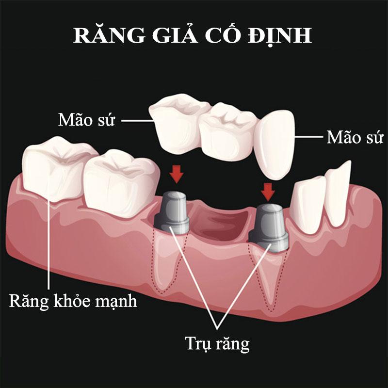 Trồng răng giả cố định như thế nào? Giá bao nhiêu tiền?