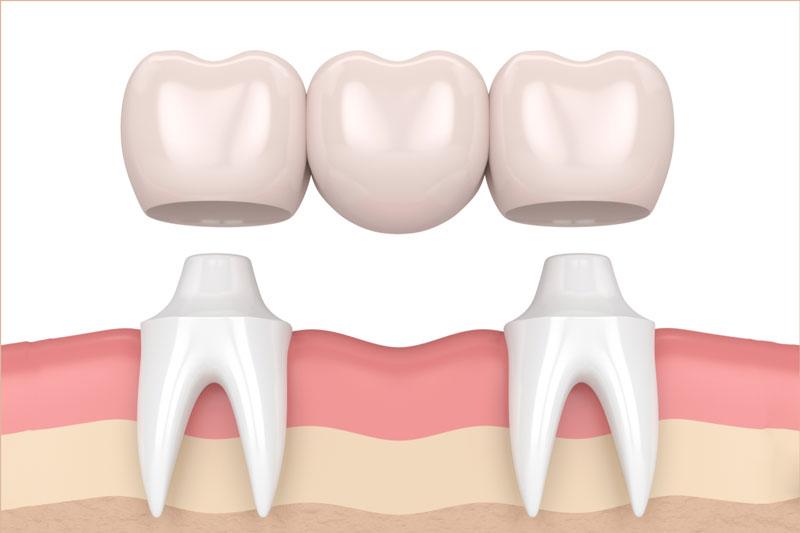 Cầu răng sứ được coi là phương pháp trồng răng giả cố định cấp tốc (2 - 3 ngày)
