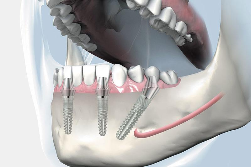Trụ Implant gắn trực tiếp vào xương hàm nên răng Implant có độ bền chắc cao