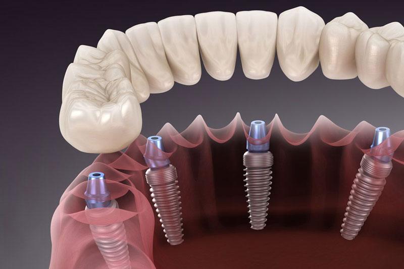 Trồng răng Implant cho các trường hợp mất răng toàn hàm tránh tình trạng tiêu xương hàm