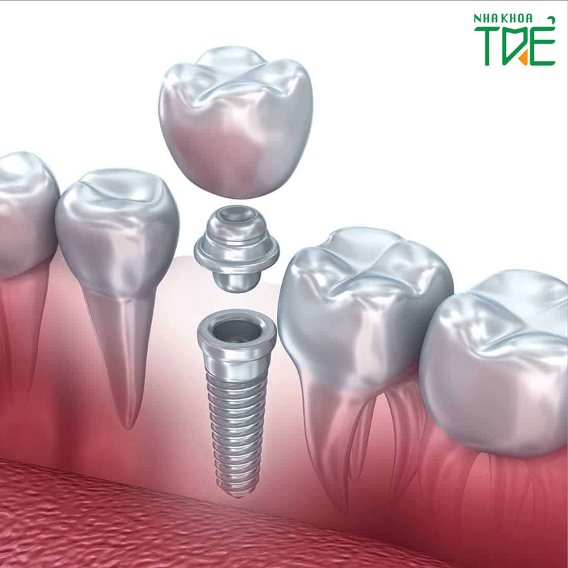 Trồng răng hàm bị tiêu xương giá bao nhiêu tiền năm 2020?