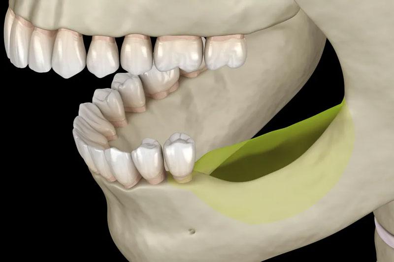 Biến chứng tiêu xương hàm xảy ra do mất răng lâu năm