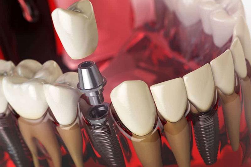 Răng Implant tương tự răng thật đảm bảo ăn nhai và thẩm mỹ
