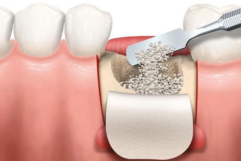 Cấy ghép xương răng rất cần thiết trước khi phục hình răng