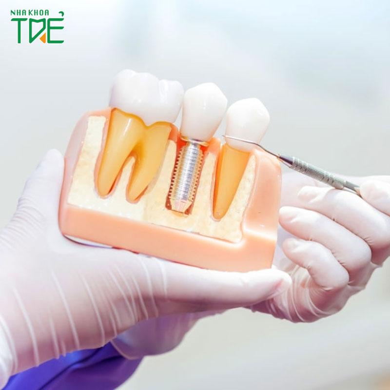 [Tư vấn] Trồng răng mất chân răng loại nào tốt nhất?