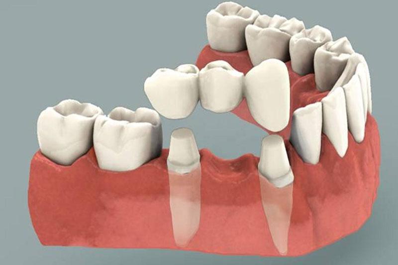 Cầu răng sứ phải mài cùi răng để làm trụ răng sứ