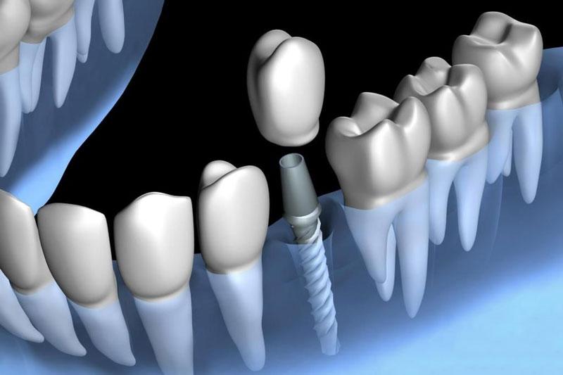 Trồng răng Implant có tuổi thọ cao lên tới 25 năm