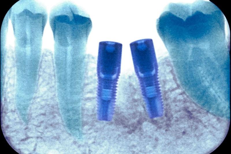 Trụ Implant được cấy ghép trực tiếp vào xương hàm thay thế chân răng đã mất