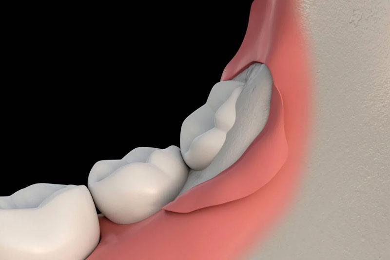 Thời gian răng khôn mọc hoàn thiện mất vài năm