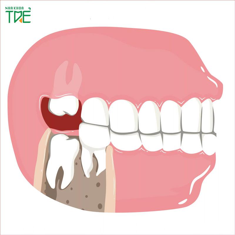 [Giải Đáp] Ý nghĩa của răng khôn là gì? Tốt hay Xấu?