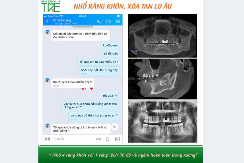 Review khách hàng nhổ răng khôn mọc ngầm trong xương hàm tại Nha khoa Trẻ