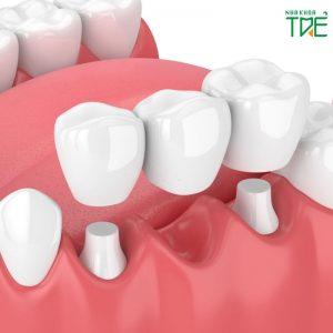 Bắc cầu răng sứ là gì? Trồng răng sứ bắc cầu có tốt không?