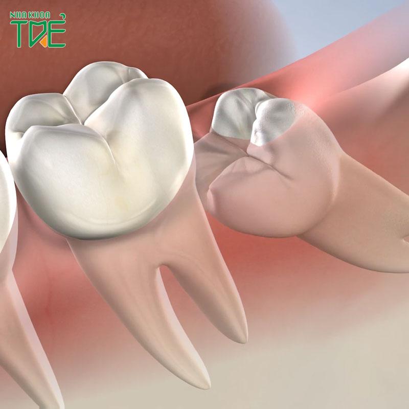 Biến chứng răng khôn bạn cần đặc biệt lưu ý