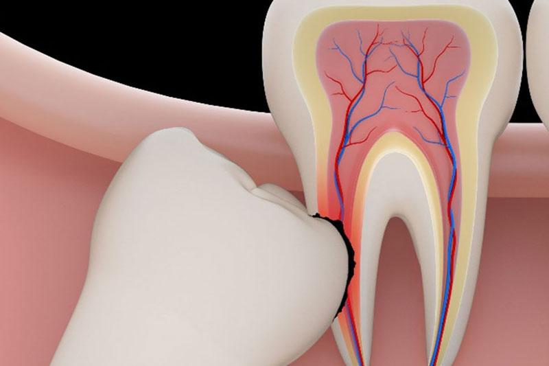 Răng khôn đâm vào chân răng số 7 có nguy cơ làm hỏng răng