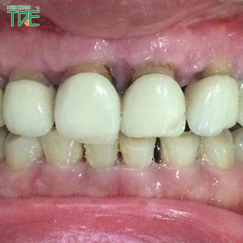 Bọc răng sứ bị tụt lợi | Nguyên nhân và cách khắc phục