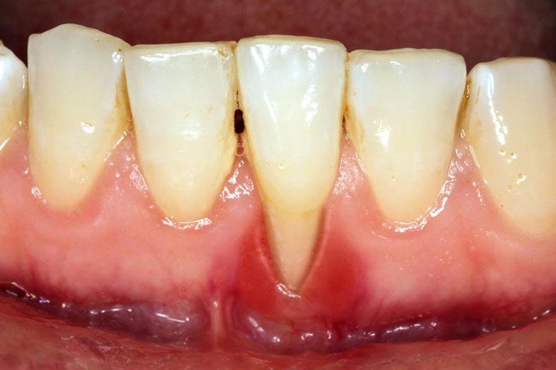 Bọc răng sứ bị tụt lợi làm mòn cổ chân răng