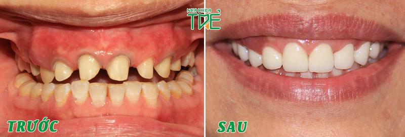Bọc răng lại răng sứ mới để để ngăn ngừa biến chứng tụt nướu, tụt lợi