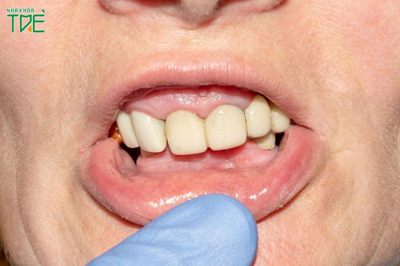 Bọc răng sứ bị viêm lợi, đau nướu là do đâu? Cách khắc phục như thế nào?