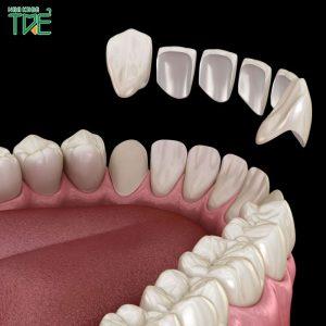 Bọc răng sứ giữ được bao lâu?