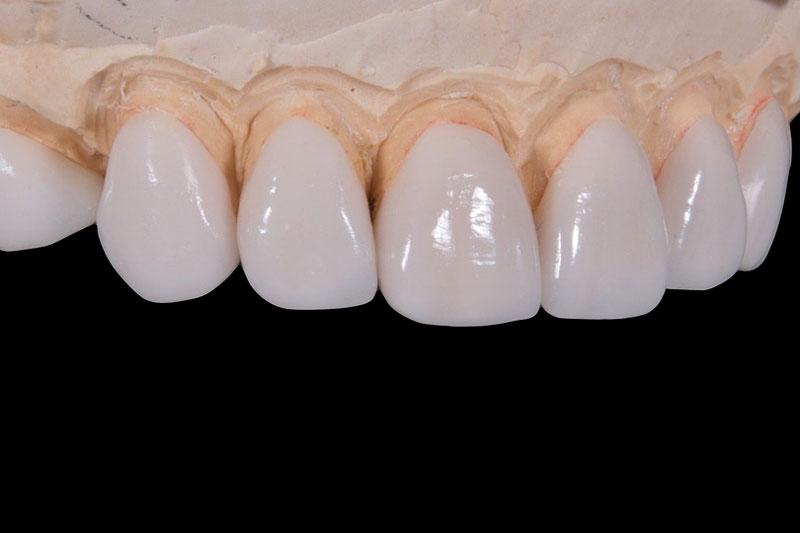 Loại răng sứ ảnh hưởng rất lớn đến việc bọc răng sứ giữ được bao lâu