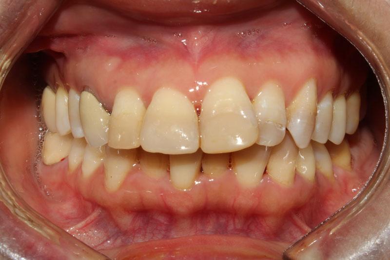 Răng xỉn màu hay răng hô, khấp khểnh đều có thể phục hình bằng cách bọc răng sứ