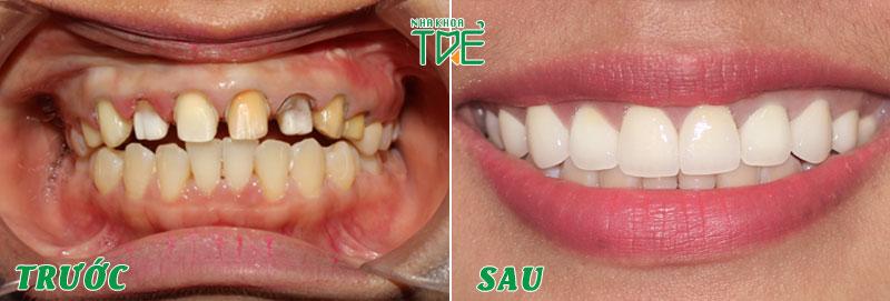 Mài cùi răng đúng tỷ lệ đảm bảo răng sứ sát khít, đều đẹp