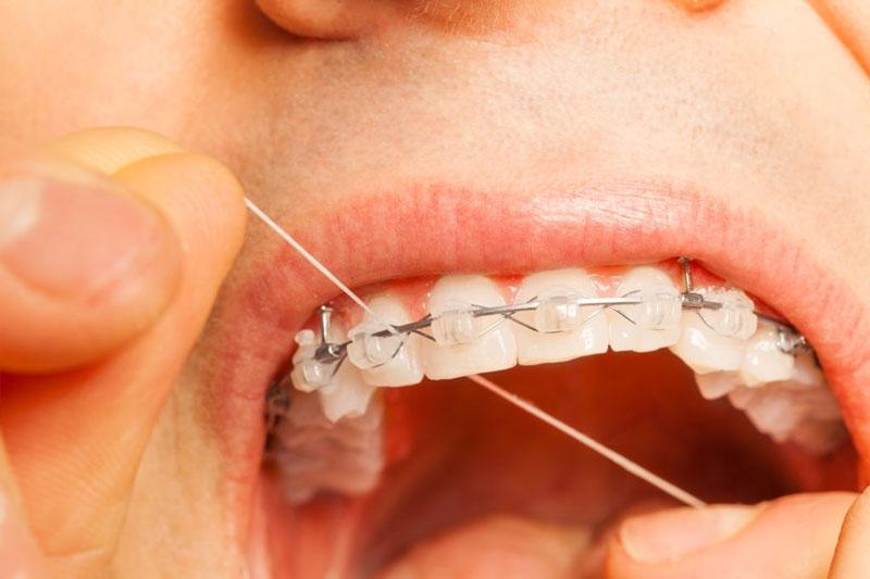 Sử dụng thêm chỉ nha khoa để chăm sóc răng niềng hiệu quả