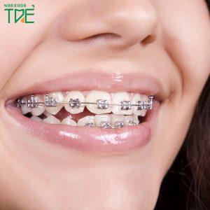 Chỉnh răng lệch lạc như thế nào? Giá niềng răng lệch lạc bao nhiêu?