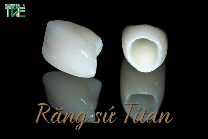 Giá làm răng sứ Titan bao nhiêu tiền?
