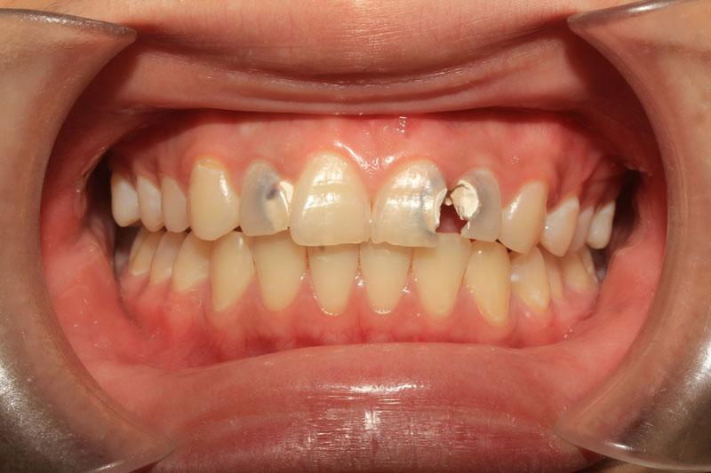 Phục hình răng sứ cho các răng sứ mẻ