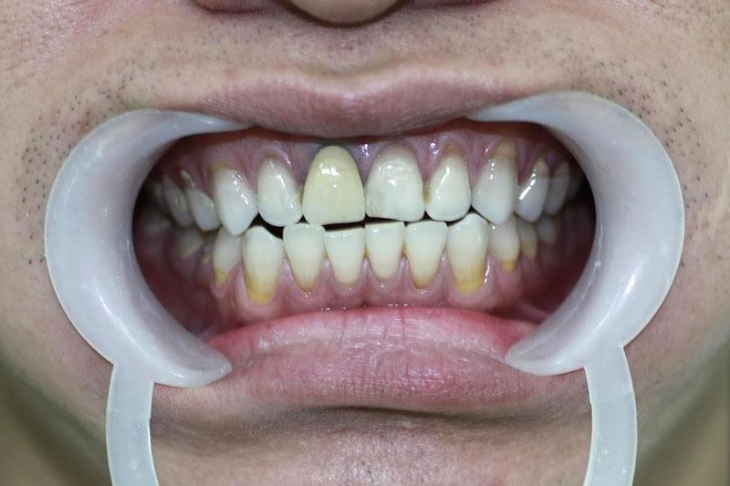 Sau thời gian dài sử dụng răng sứ titan có thể làm đen viền nướu