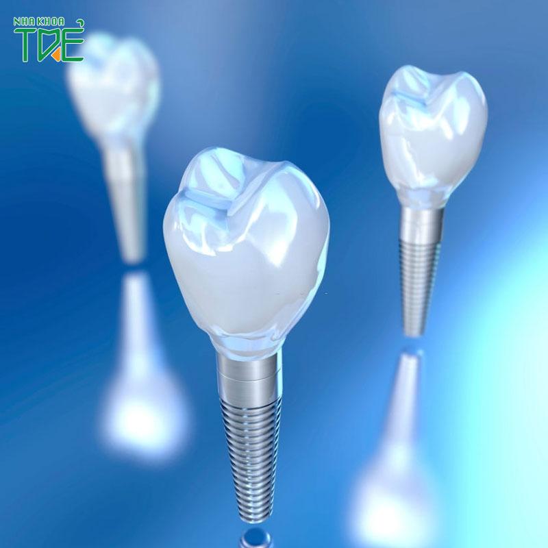 Implant là gì? Trồng răng sứ Implant như thế nào?