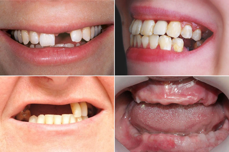 Trồng răng Implant phục hình được hầu hết các trường hợp mất răng
