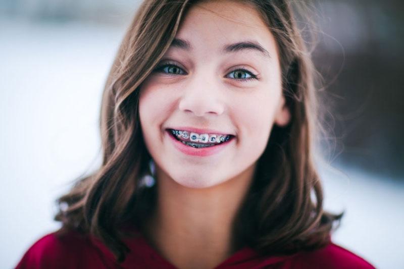 Niềng răng giúp hàm răng đều đẹp và nụ cười tự tin hơn