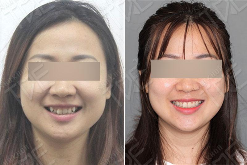 Kết quả của khách hàng Nha khoa Trẻ sau niềng răng lệch lạc và cắt lợi