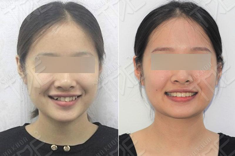 Niềng răng lệch lạc đạt kết quả cao tại Nha khoa Trẻ