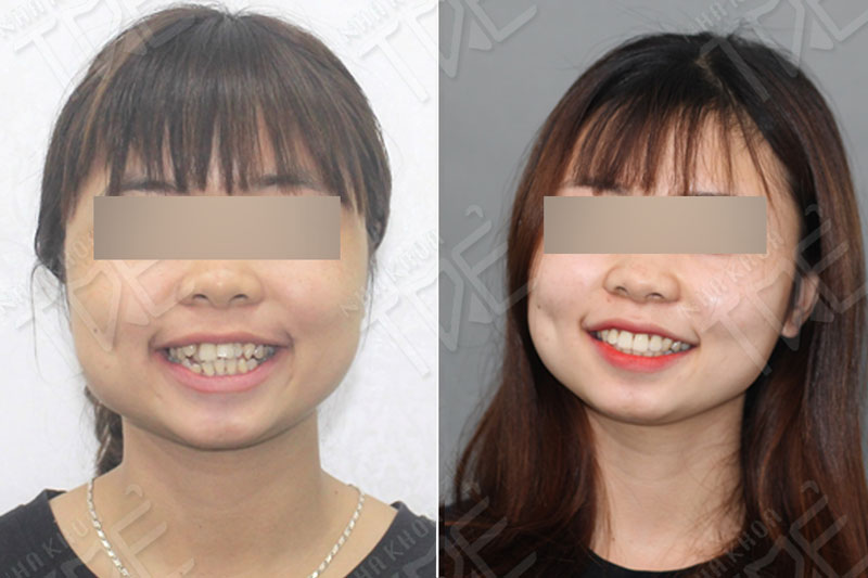 Sau niềng răng giúp khách hàng Nha khoa Trẻ có nụ cười tươi tắn hơn rất nhiều