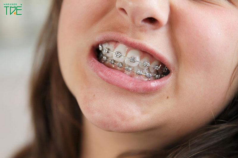 Mách bạn 9 kinh nghiệm niềng răng giúp tránh xa biến chứng