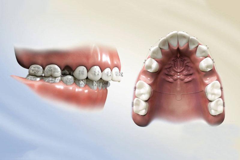 Nhổ răng để niềng trong trường hợp thiếu khoảng trống cho răng dịch chuyển