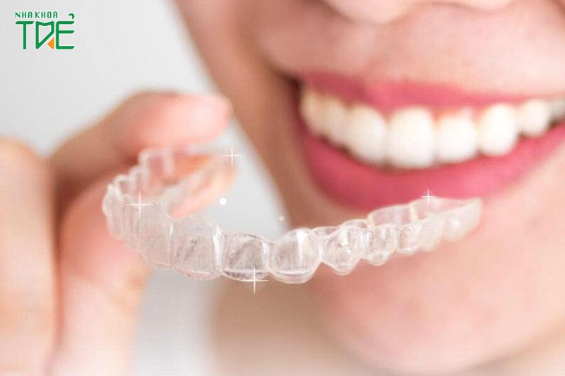 Niềng răng trong suốt giúp rút ngắn thời gian niềng từ 4 - 6 tháng