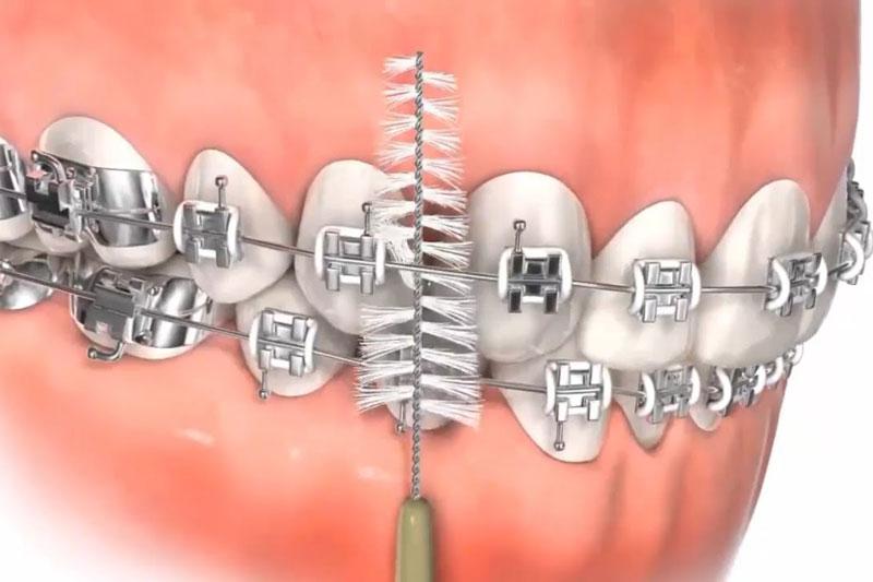 Vệ sinh răng niềng rất cần được chú trọng