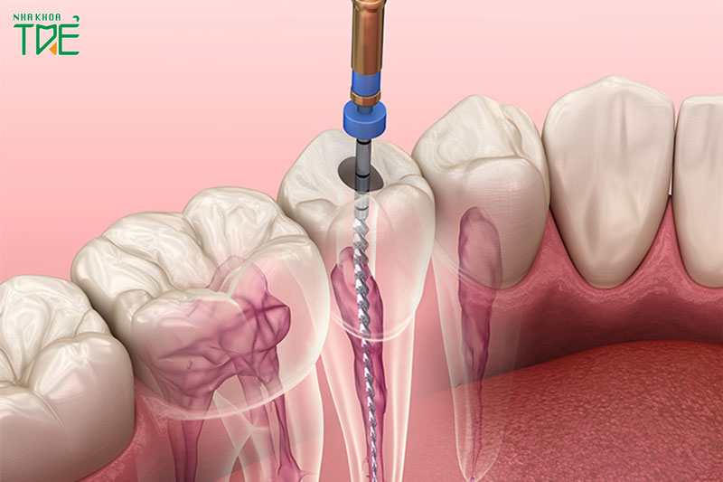 Lấy tủy răng có đau không?
