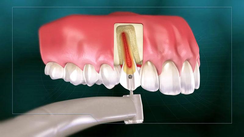 Lấy tủy răng không đau với công nghệ hiện đại
