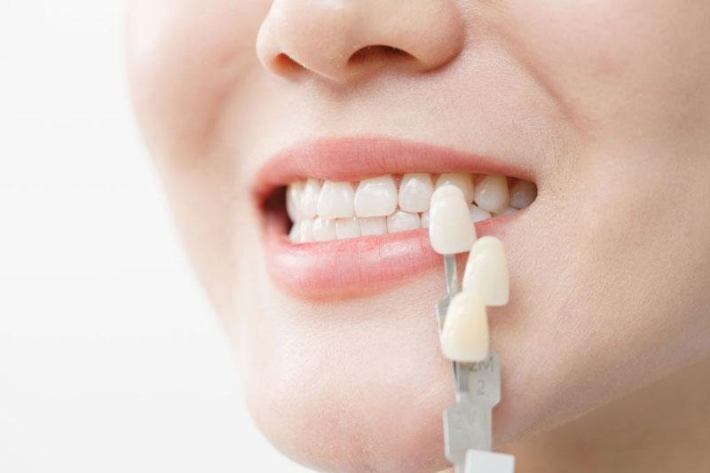 Bọc răng sứ cho răng chữa tủy để bảo vệ răng thật