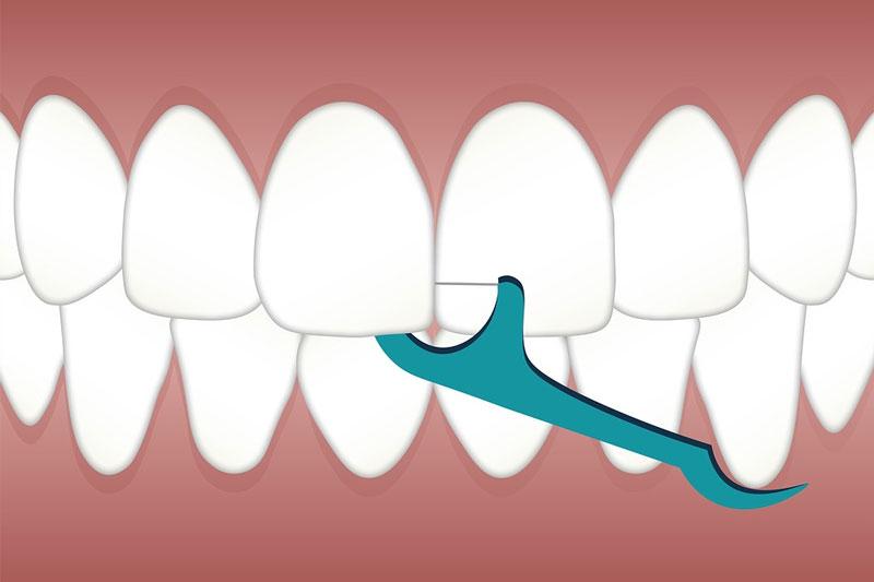 Sử dụng chỉ nha khoa để vệ sinh kẽ răng cho bé