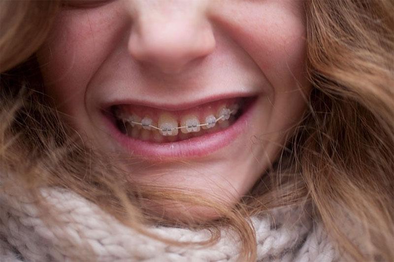 Mài răng khi niềng để tạo khoảng trống giúp răng dịch chuyển dễ dàng
