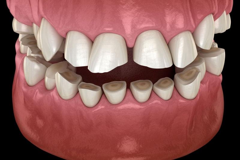 Mài răng quá nhiều làm xâm lấn đến cấu trúc của răng khiến mài răng bị ê buốt