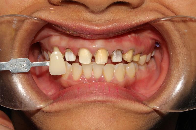 Mài răng để niềng hay bọc răng sứ đều phải đảm bảo tỷ lệ chính xác